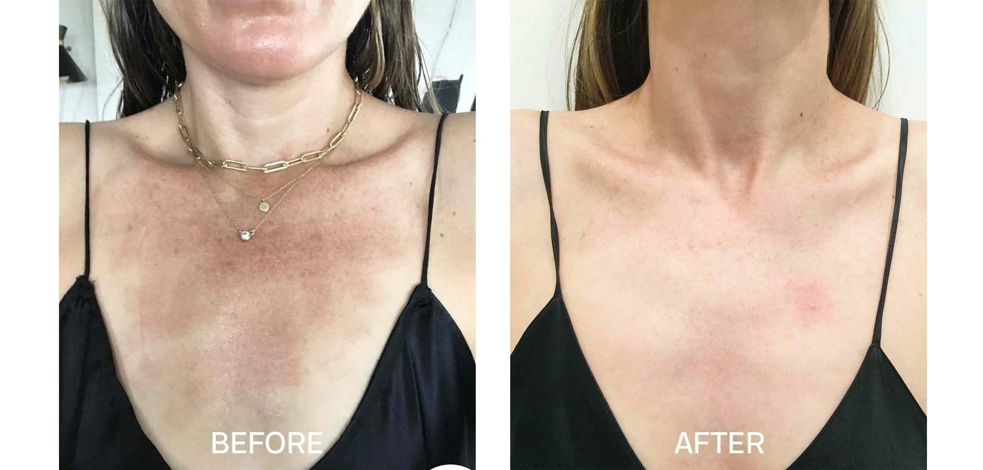 Fraxel for Sun Damage on Chest