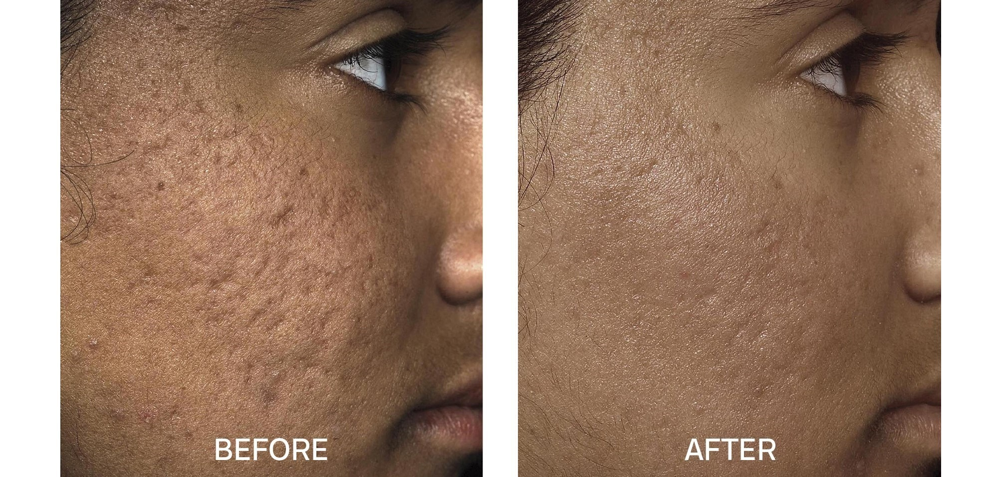 Fraxel for Acne Scars