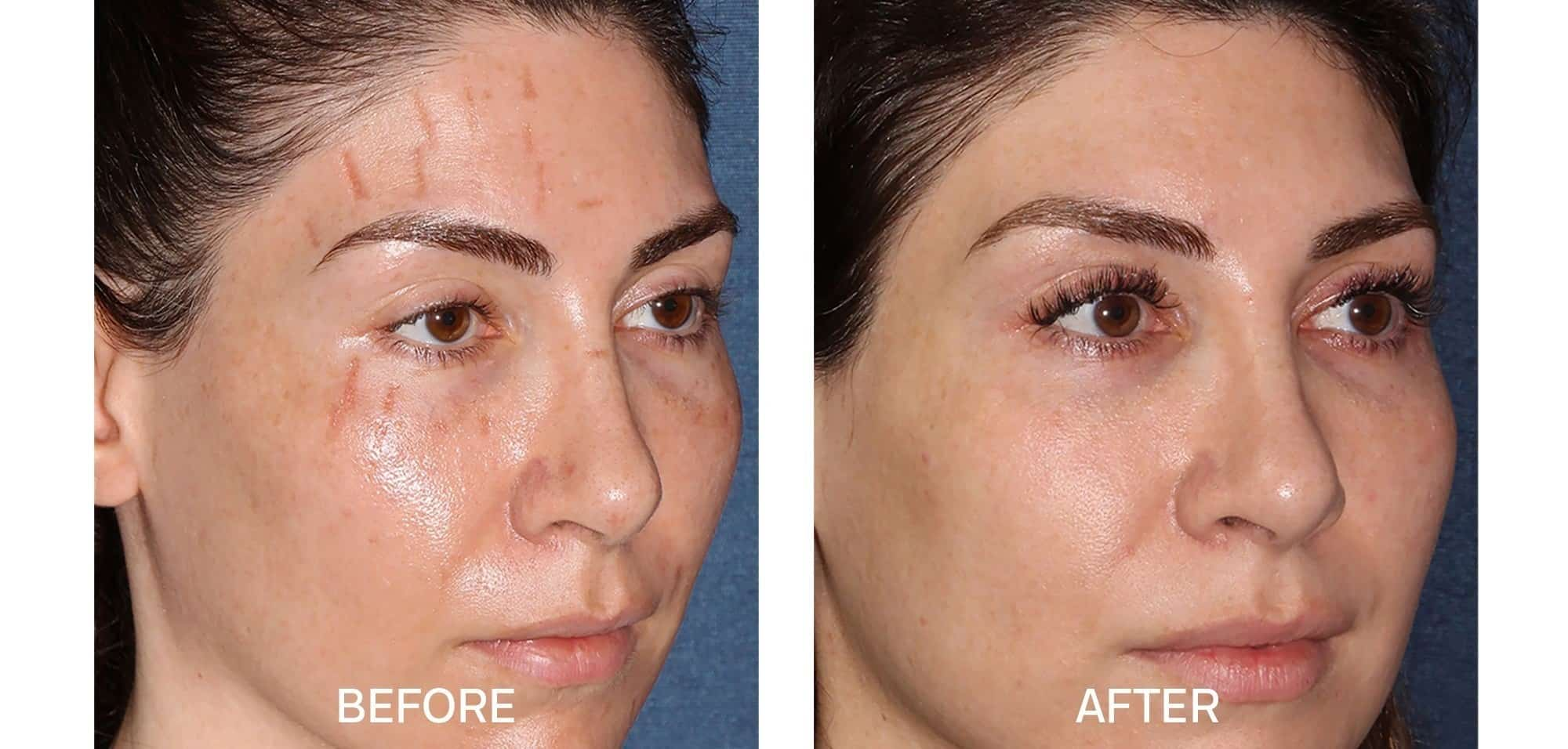 Fraxel for Scar Removal