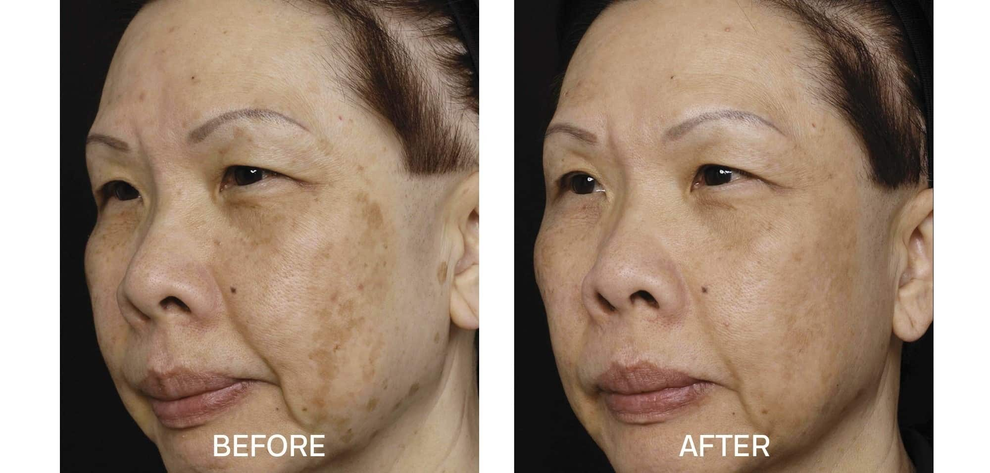 Fraxel for Uneven Skin Tone