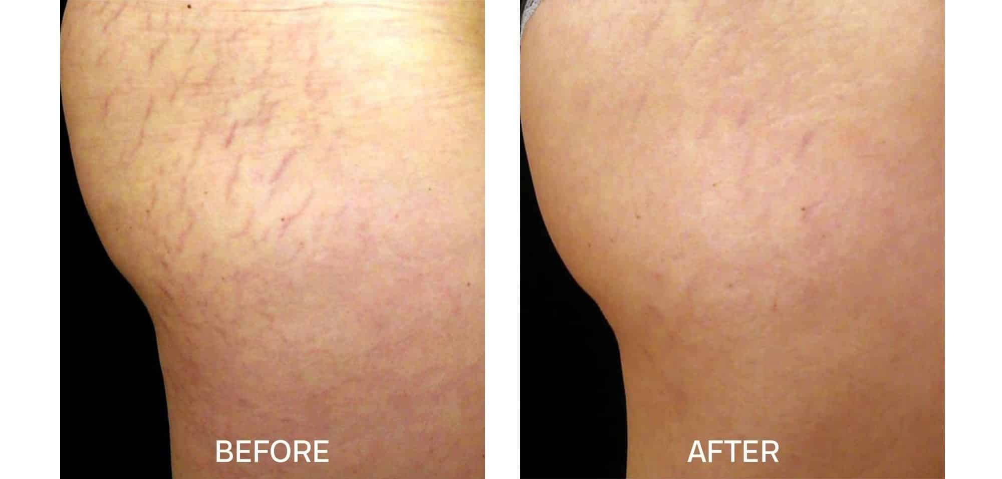 Fraxel for Stretch Marks