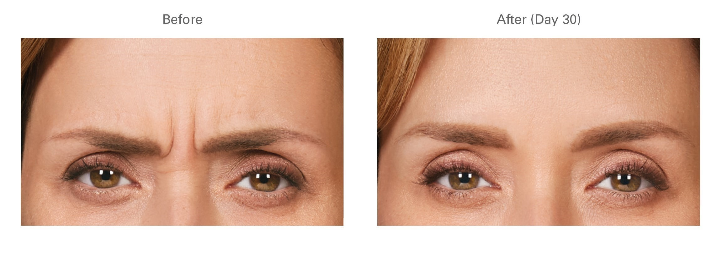 Botox® for Frown Lines