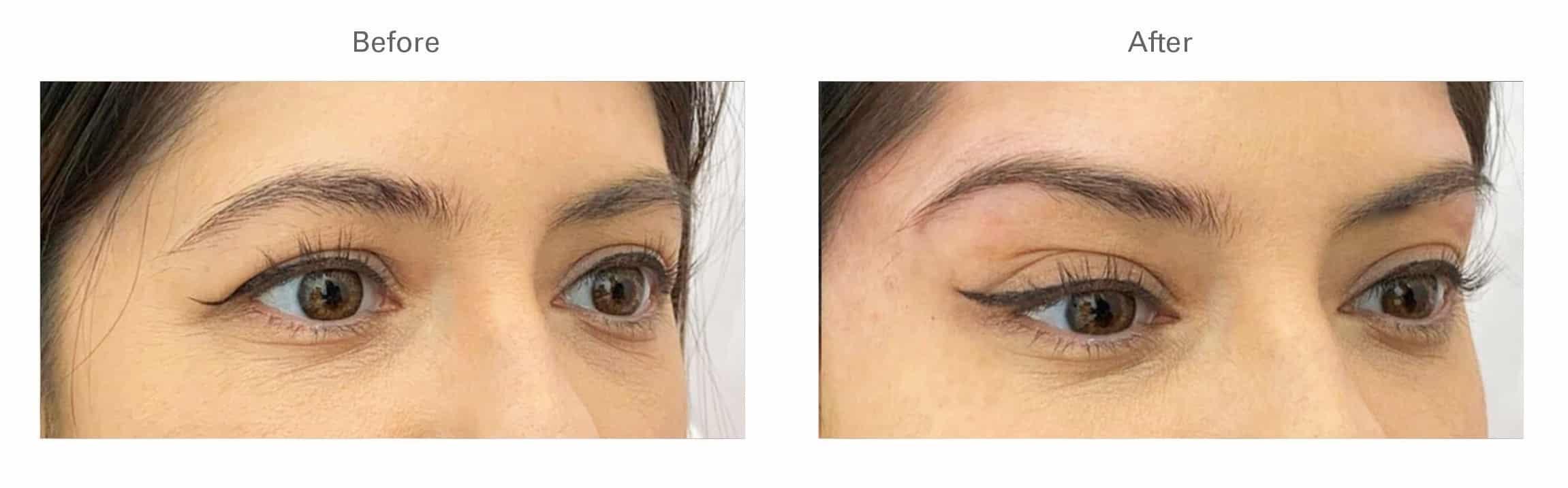 Botox® for Brow Lift
