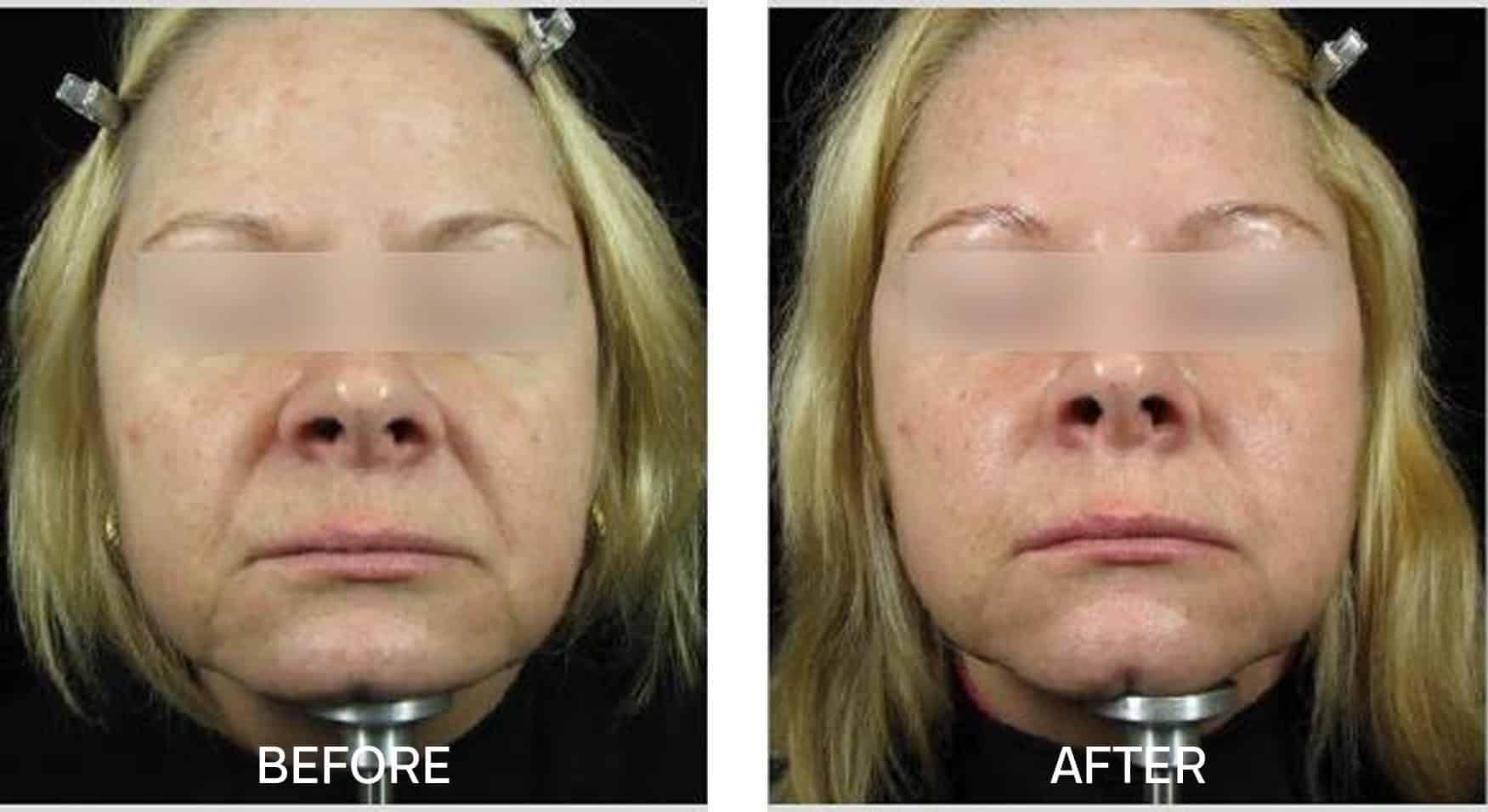 Skincare for Anti-Aging