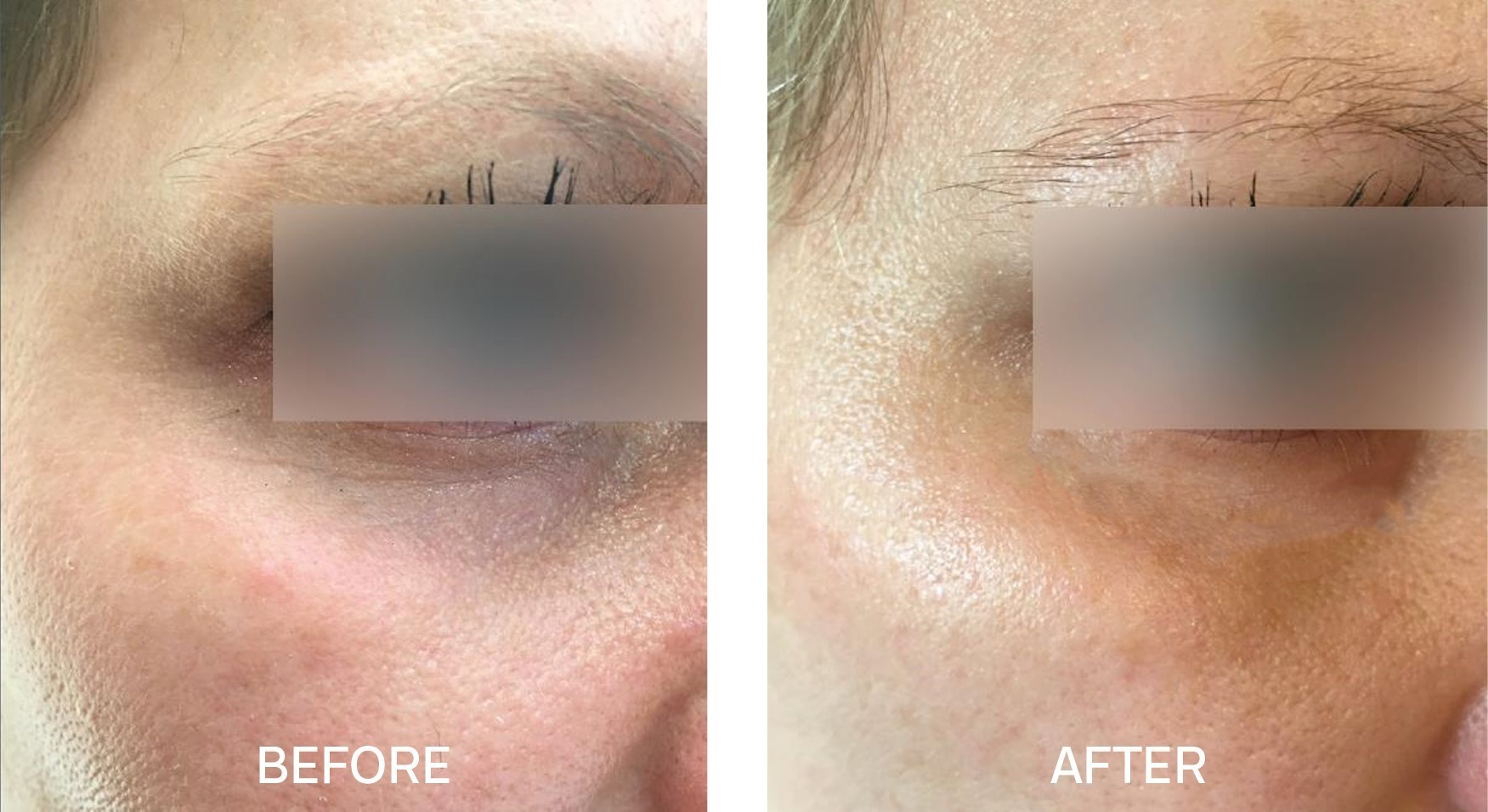 Skincare for Dark Eye Circles