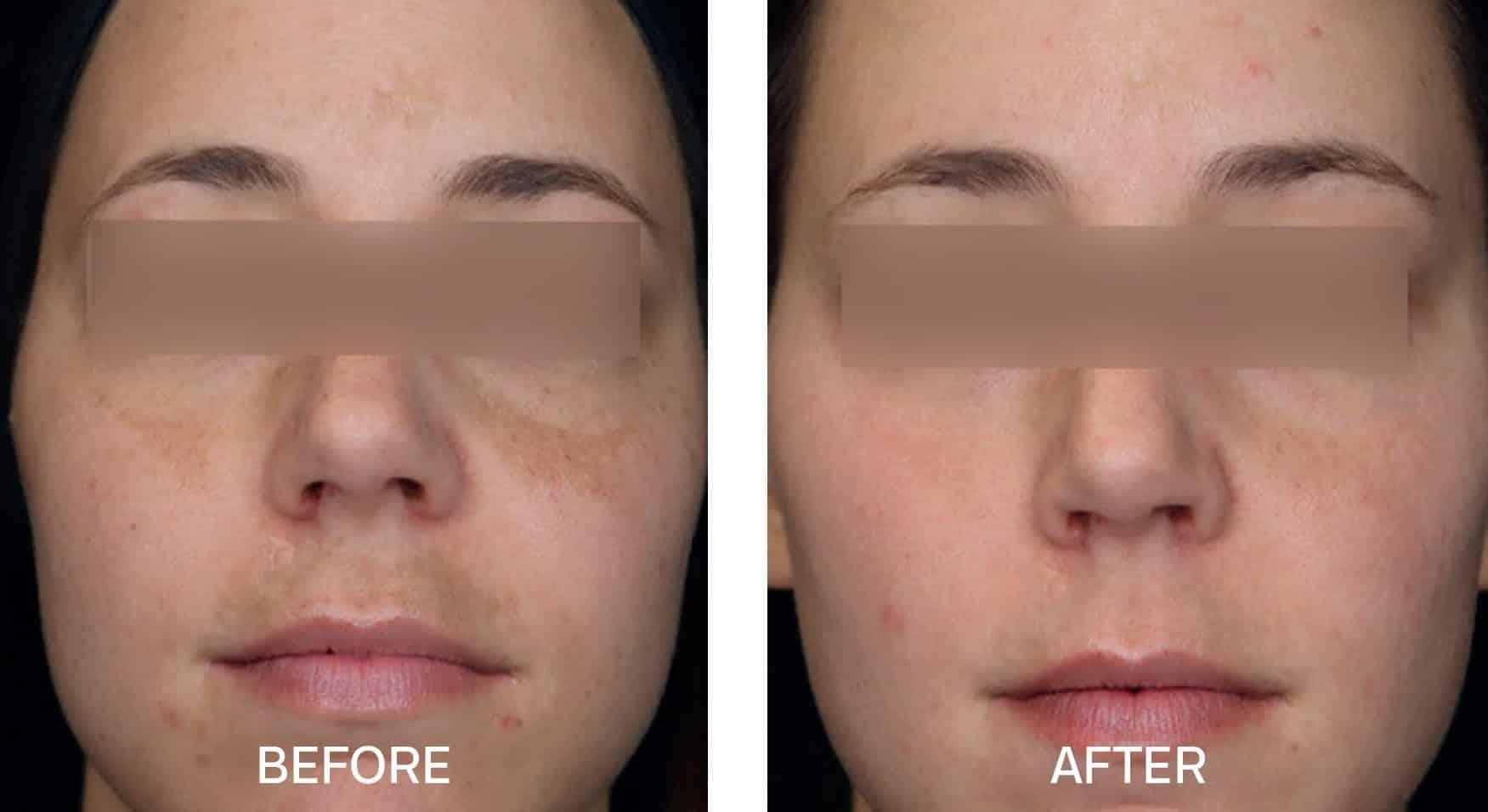 Skincare for Hyperpigmentation