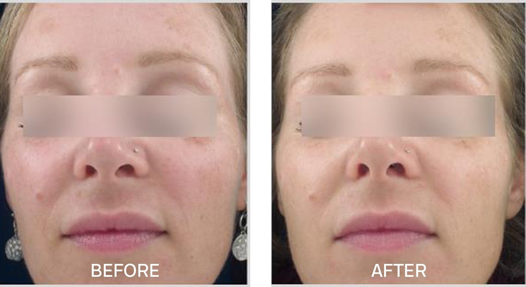 Skincare for age spots, smooth fine lines and wrinkles