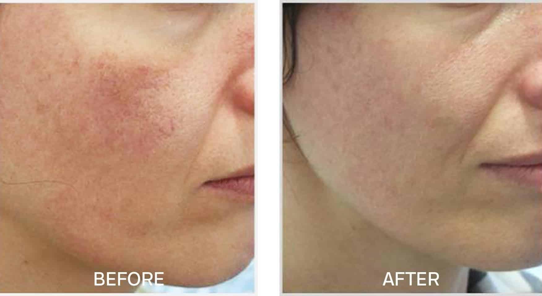 Skincare for Rosacea