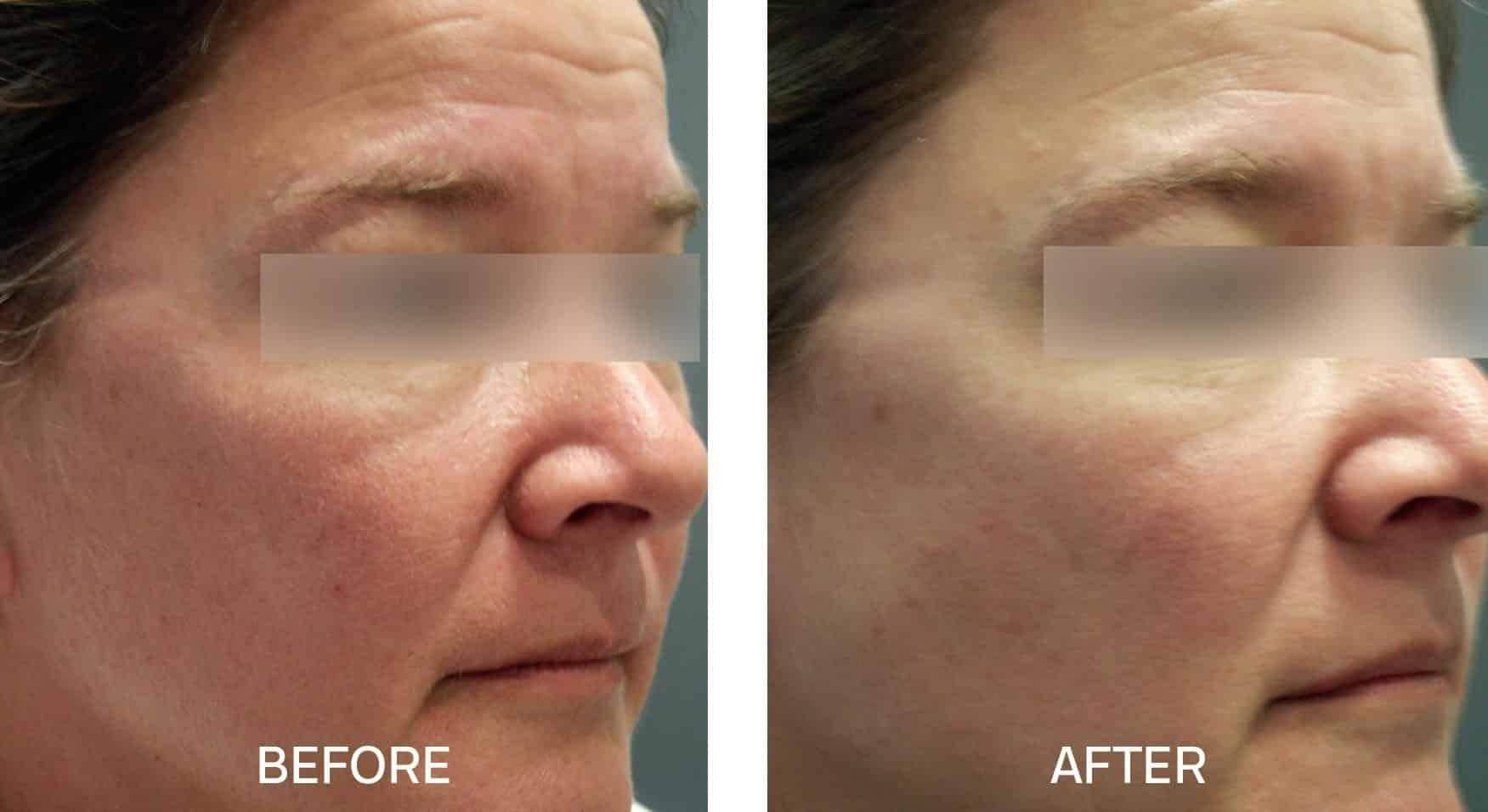 Skincare for Redness