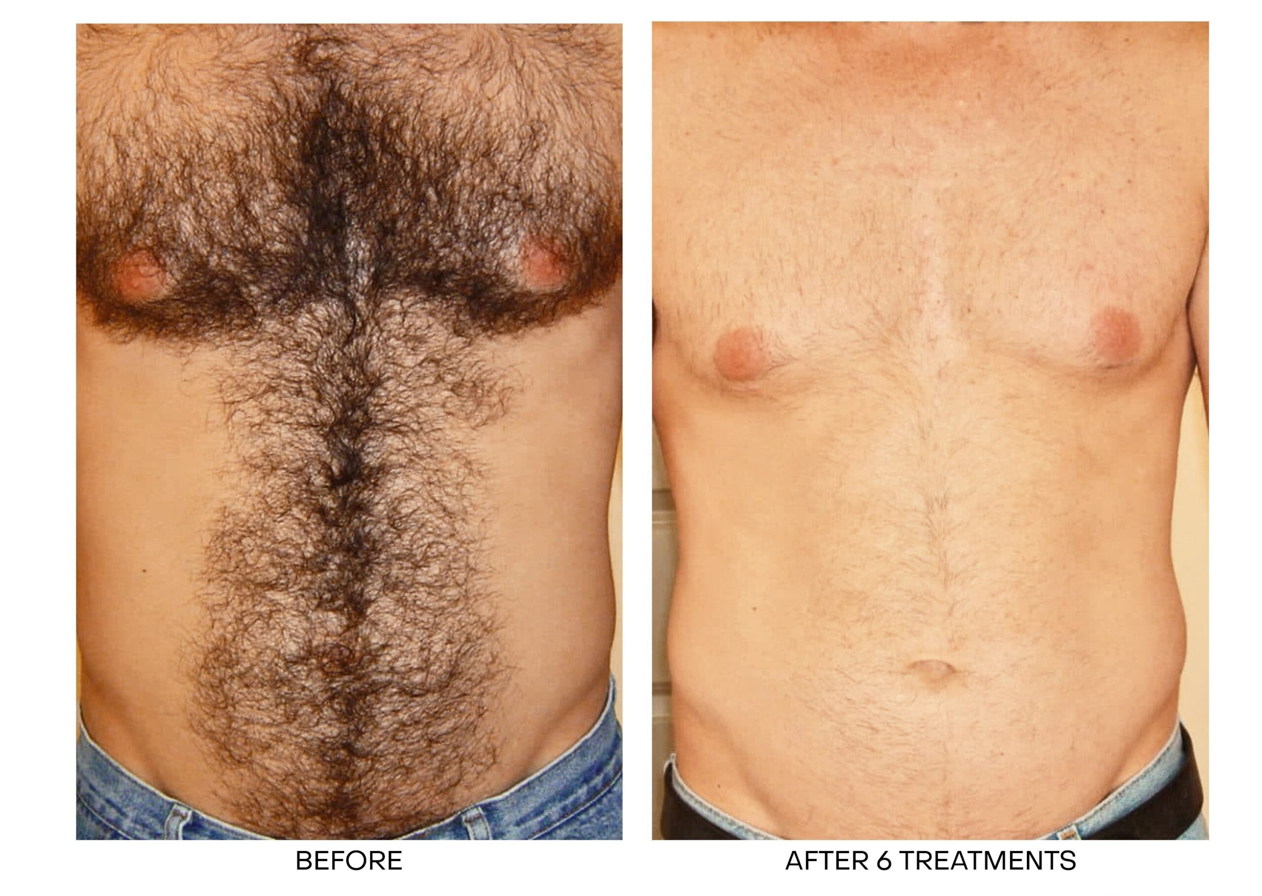 Laser Hair Removal for Chest