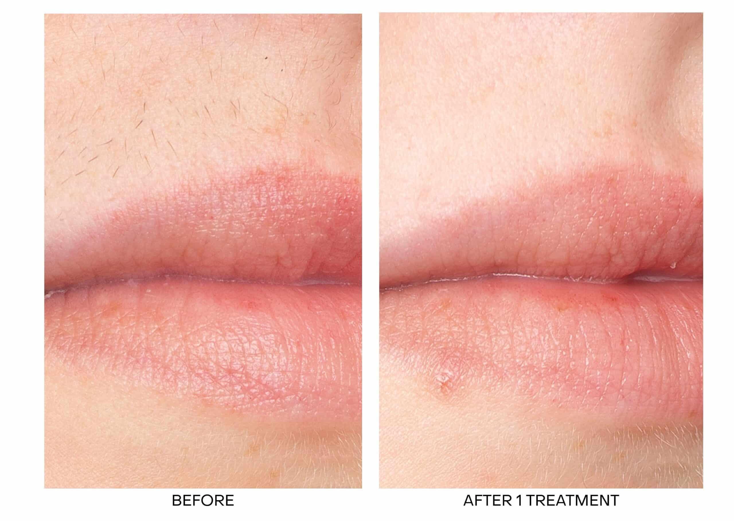 Laser Hair Removal for Upper Lip