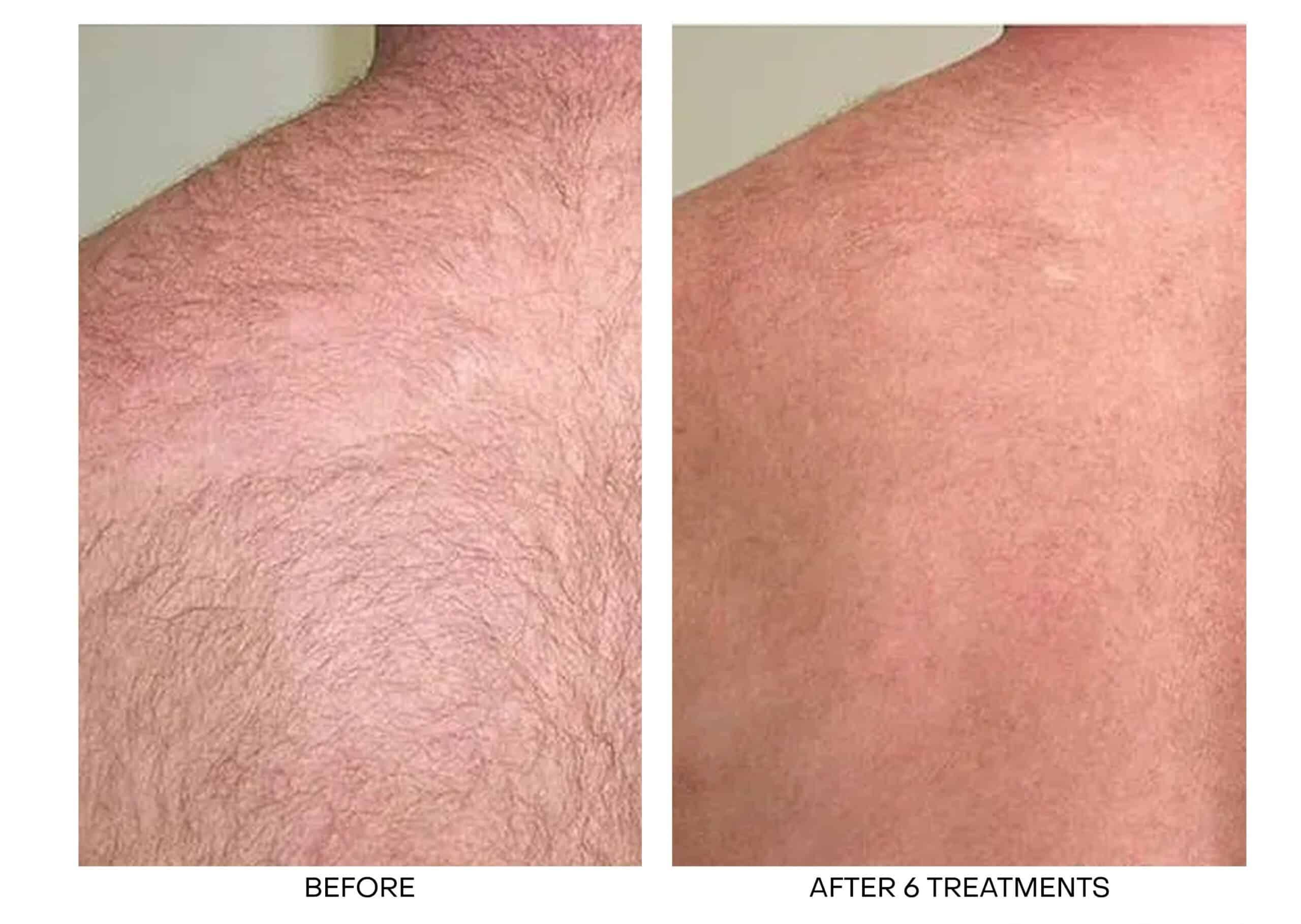Laser Hair Removal for Back