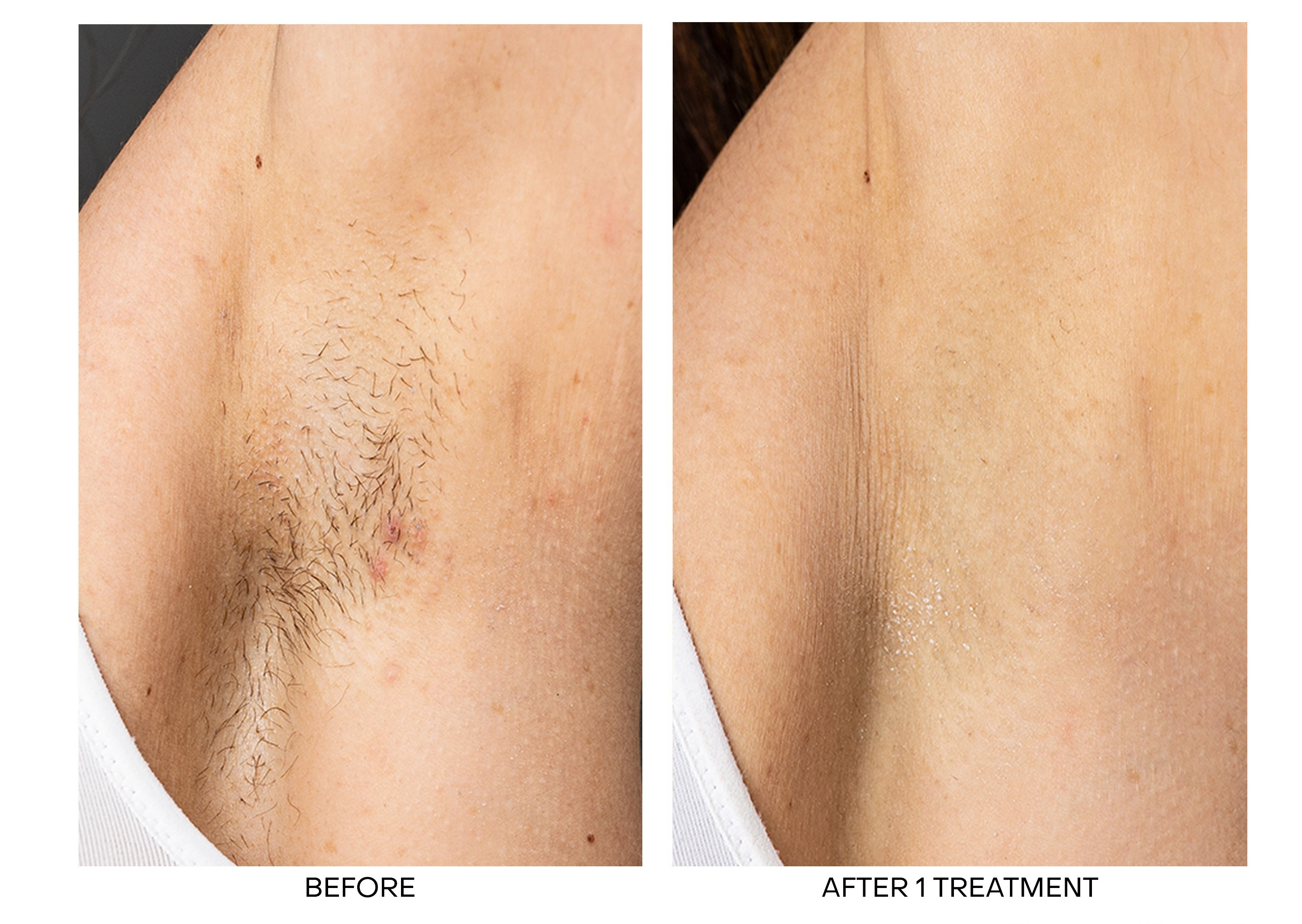 Laser Hair Removal for Armpits