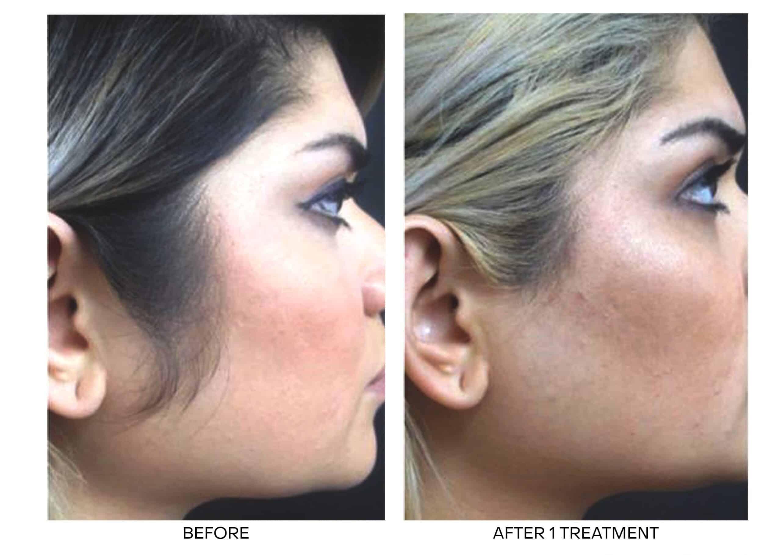 Laser Hair Removal for Sideburns