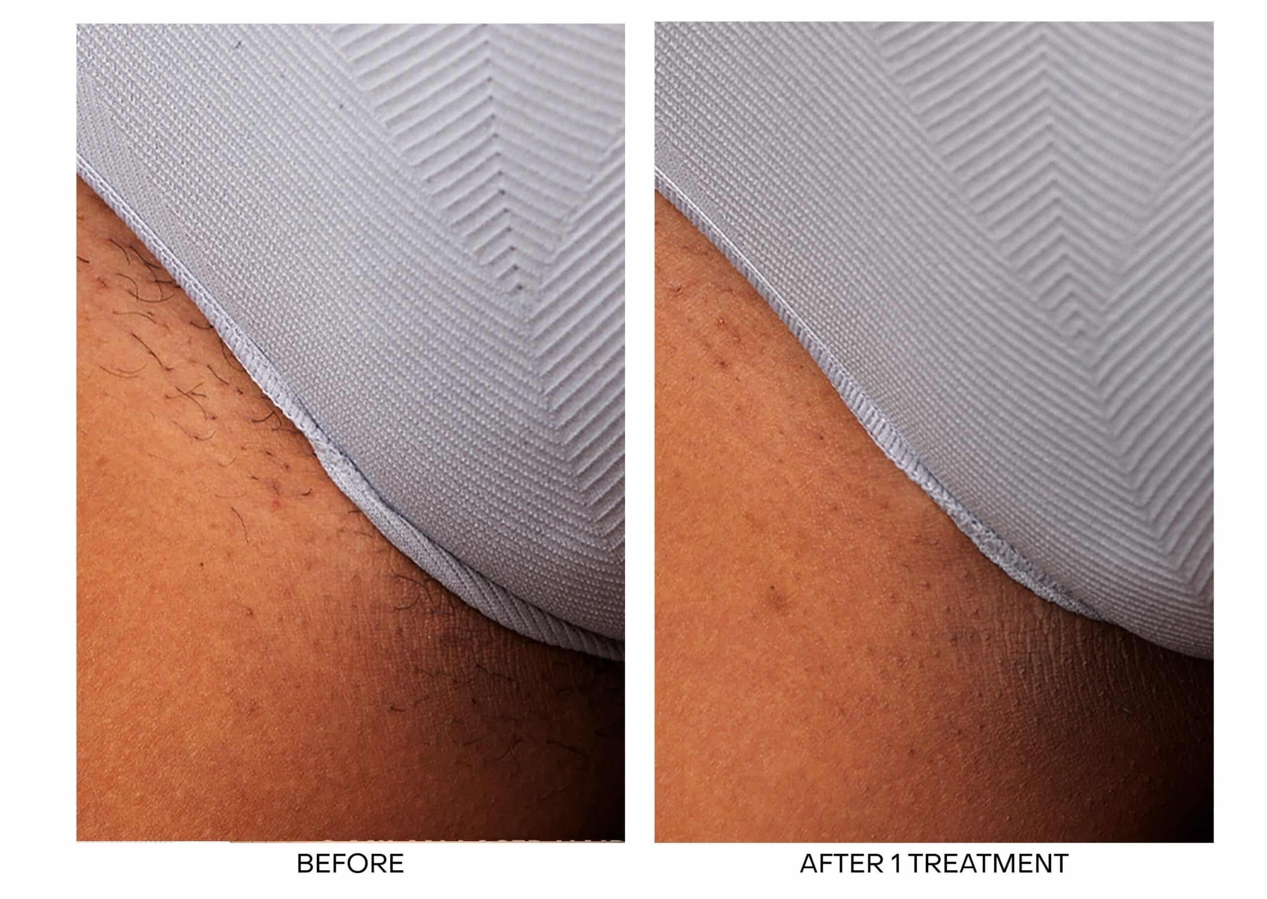 Laser Hair Removal for Bikini