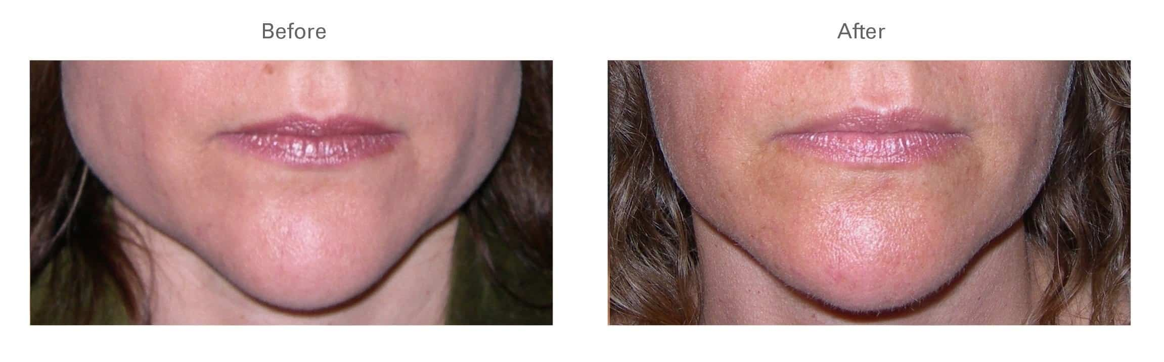 Botox® for Masseters