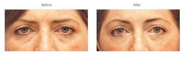 Botox® for Eyebrow Lift