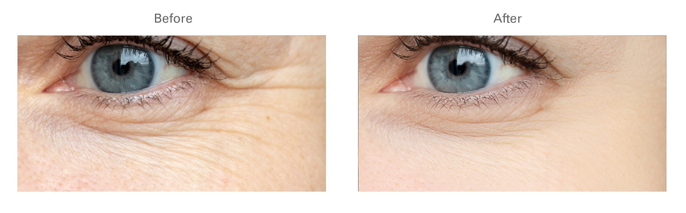 Botox® for Botox Under Eye