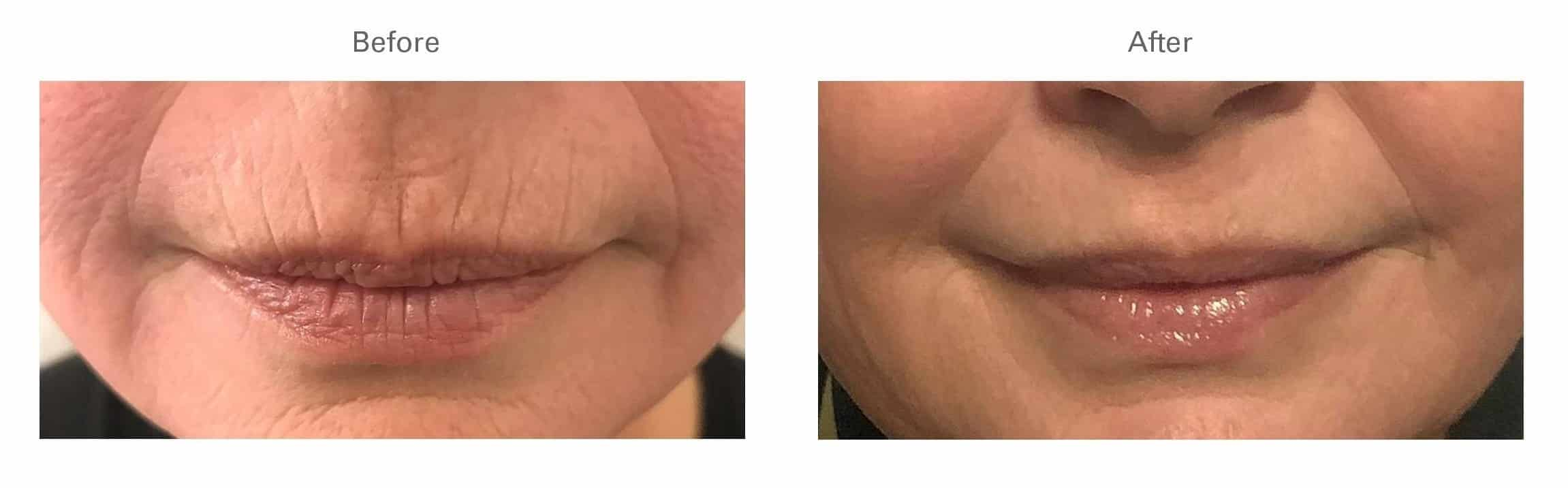 Botox® for Lip Lines