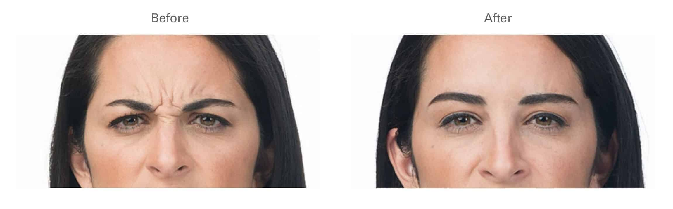 Botox® for Bunny and Frown Lines