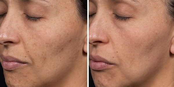 Before and After Clear + Brilliant® Laser Skin Resurfacing for Pigmentation and Wrinkles
