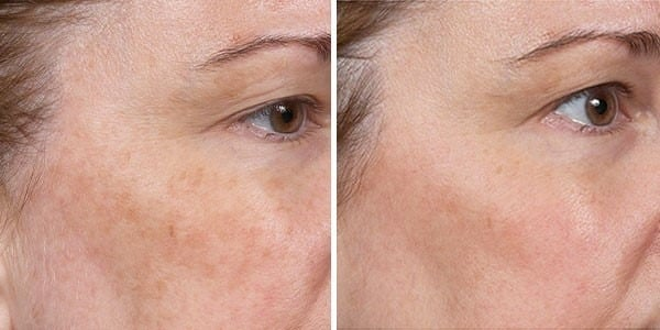 Before and After Clear + Brilliant® Laser Skin Resurfacing for Pigmentation