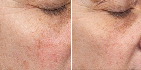 Before and After Clear + Brilliant® Laser Skin Resurfacing for Pigmentation, Redness and Pores