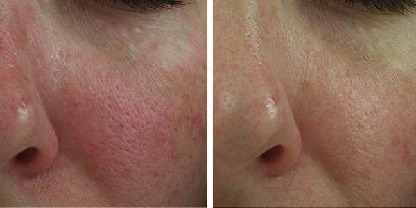 Before and After Clear + Brilliant® Laser Skin Resurfacing for Redness and Pores