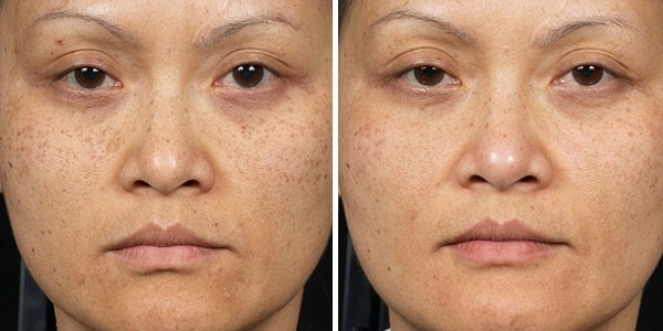 Before and After Clear + Brilliant® Laser Skin Resurfacing for Overall Skin Rejuvenation