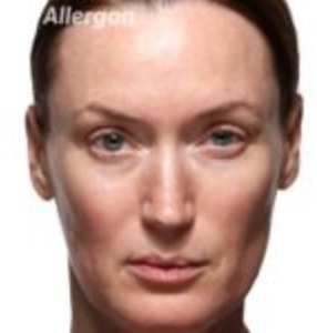 Juvederm Volite Before and After
