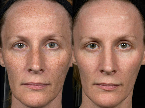 fraxel laser before and after pictures
