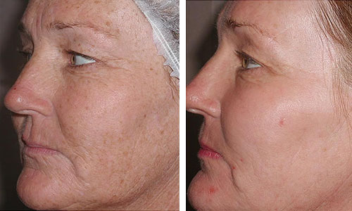 fraxel before and after - how much does fraxel laser cost