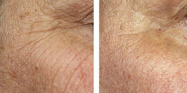 fraxel before and after results