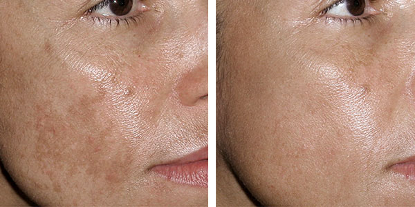 fraxel treatment before and after pictures