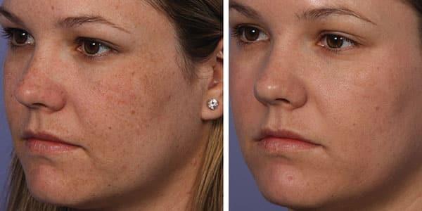 fraxel face treatment