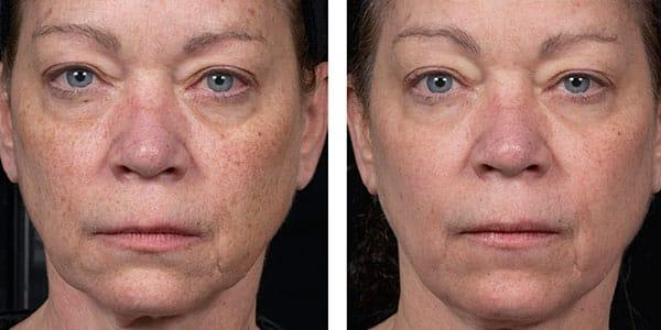 fraxel full face treatment