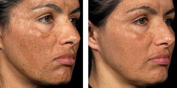 pigment removal with fraxel laser