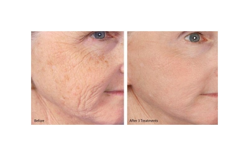 PRP® Facial for Skin Texture