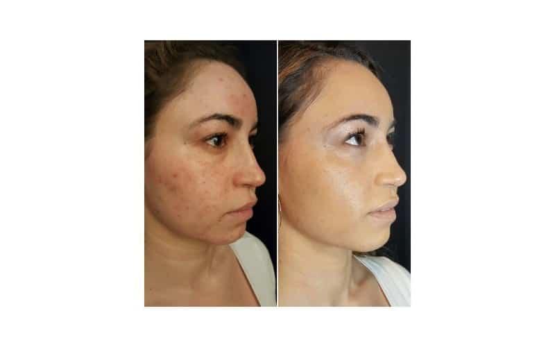 PRP® Facial for acne