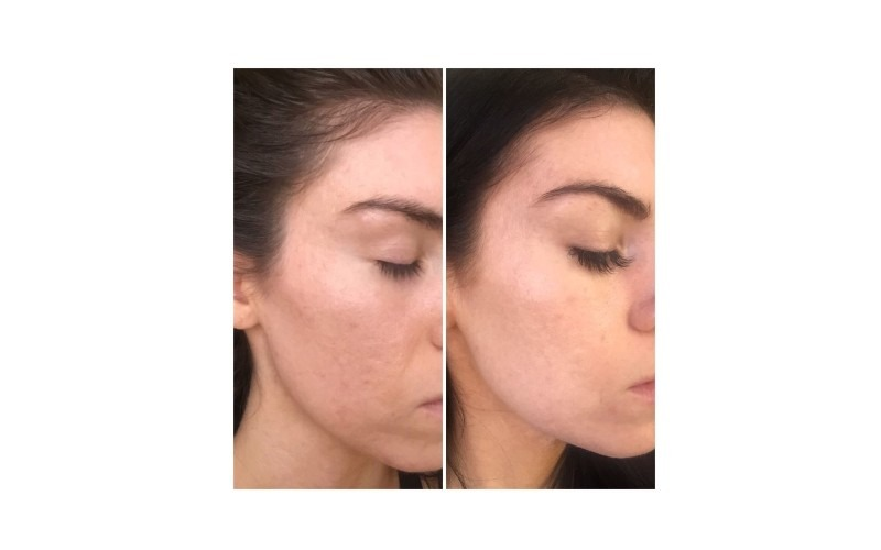 PRP® Facial for overall complexion