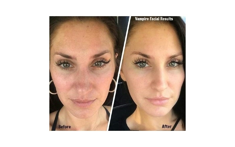 PRP® Facial for Skin Tone