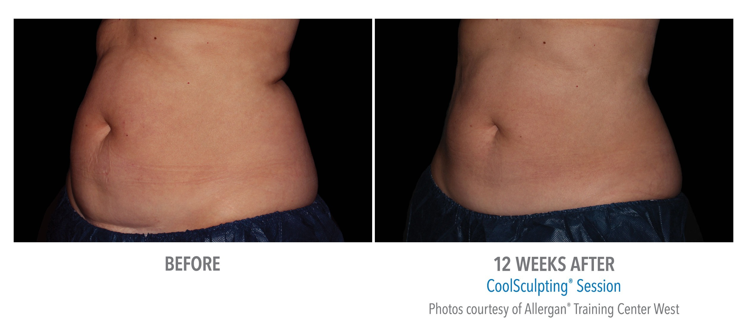 CoolSculpting® Stomach Before and After