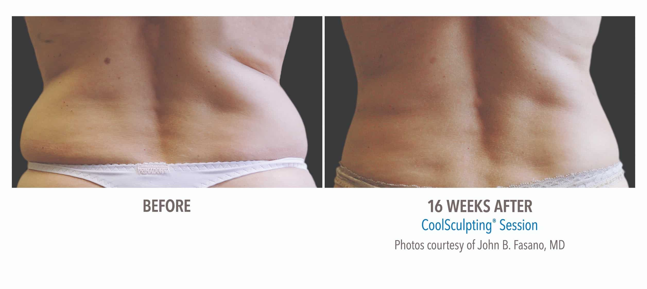 CoolSculpting® Lower Back Before and After