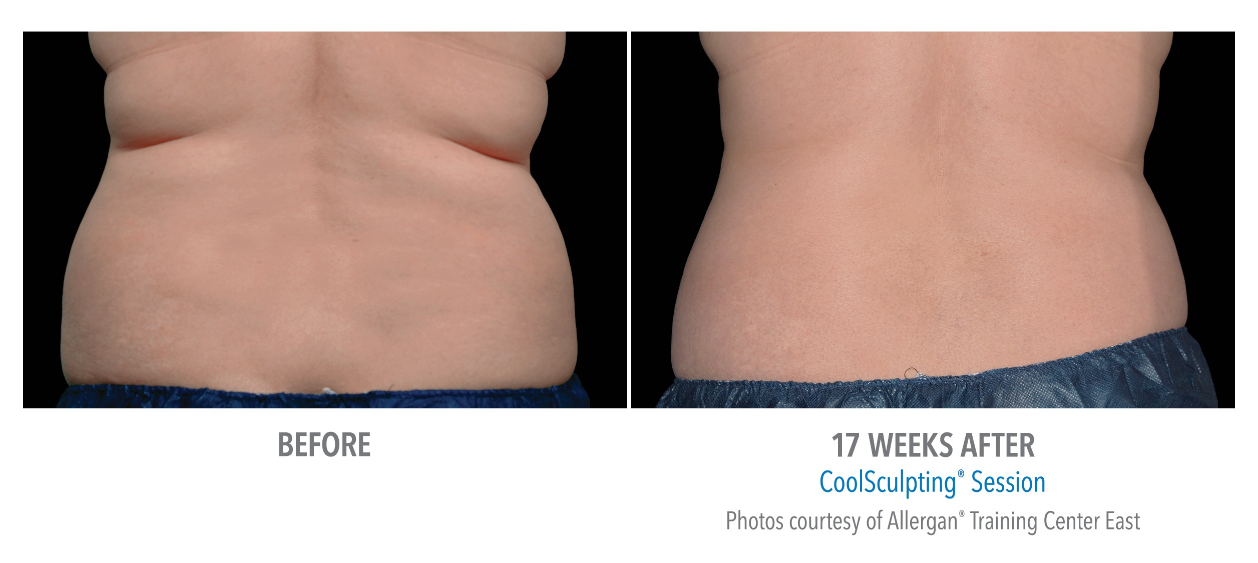 CoolSculpting® Bra Fat Before and After