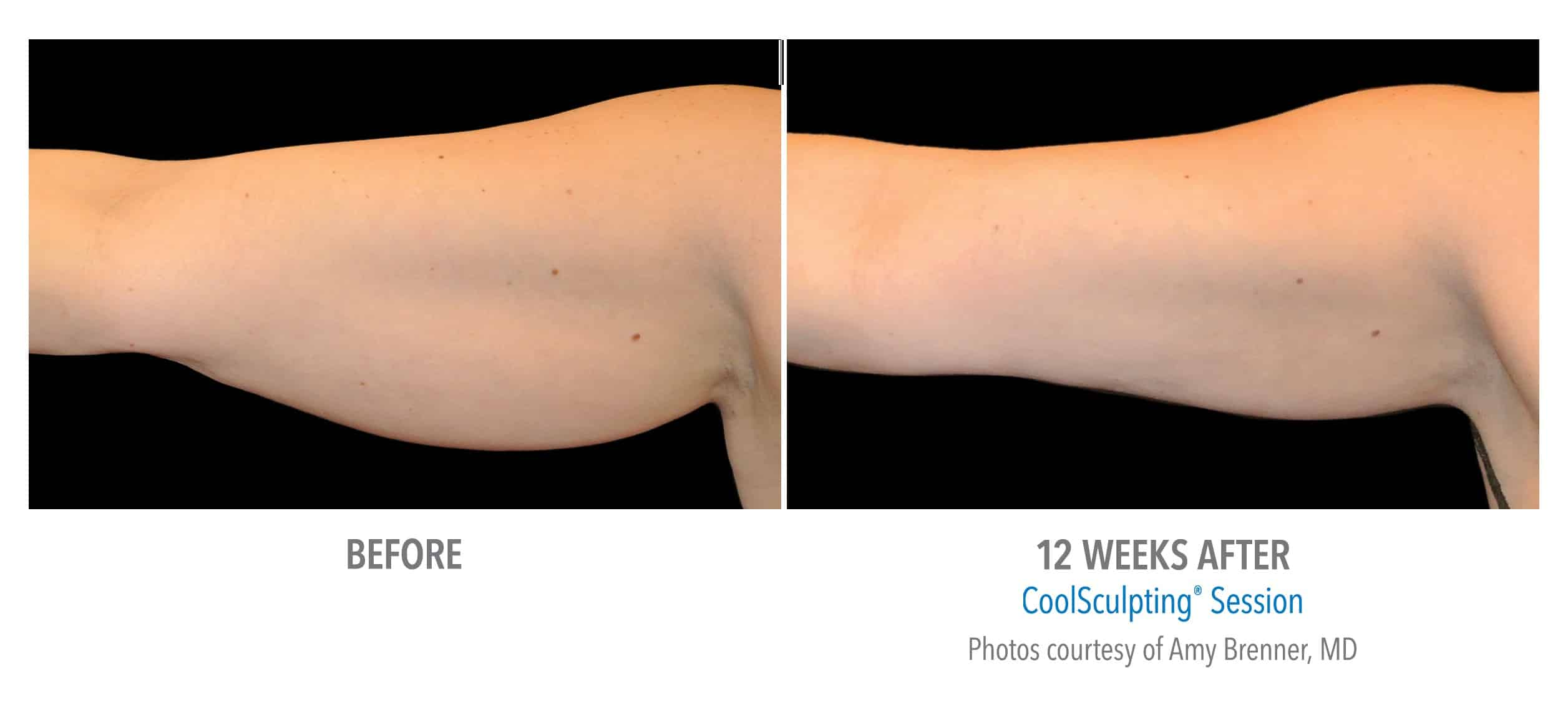 CoolSculpting® Arms Before and After