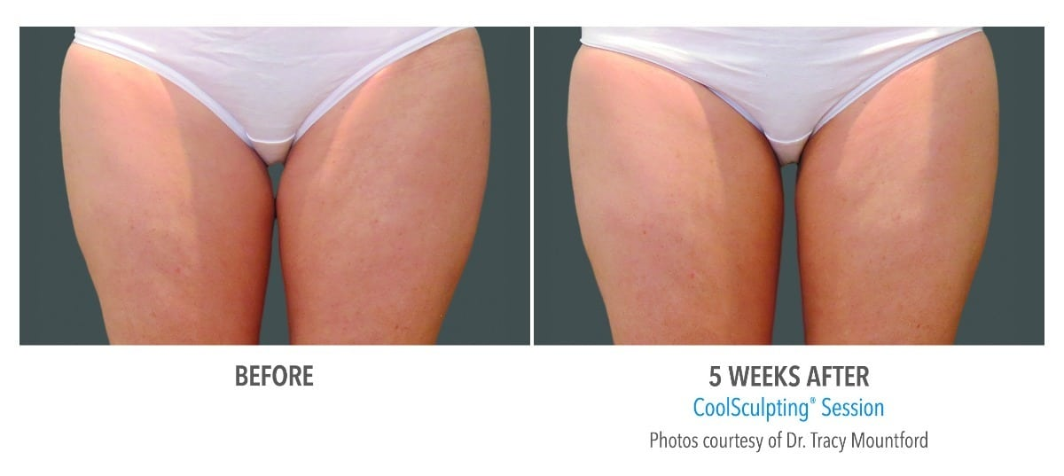 CoolSculpting® Thighs Before and After