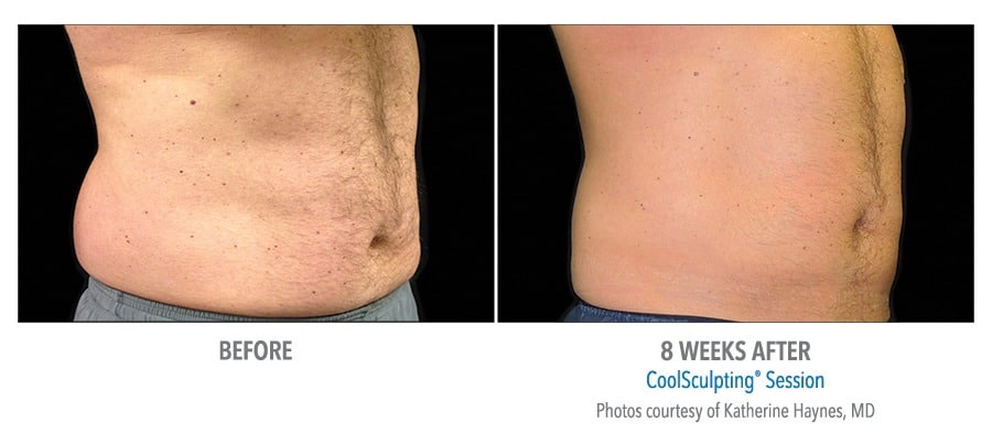 CoolSculpting® Love Handles Before and After