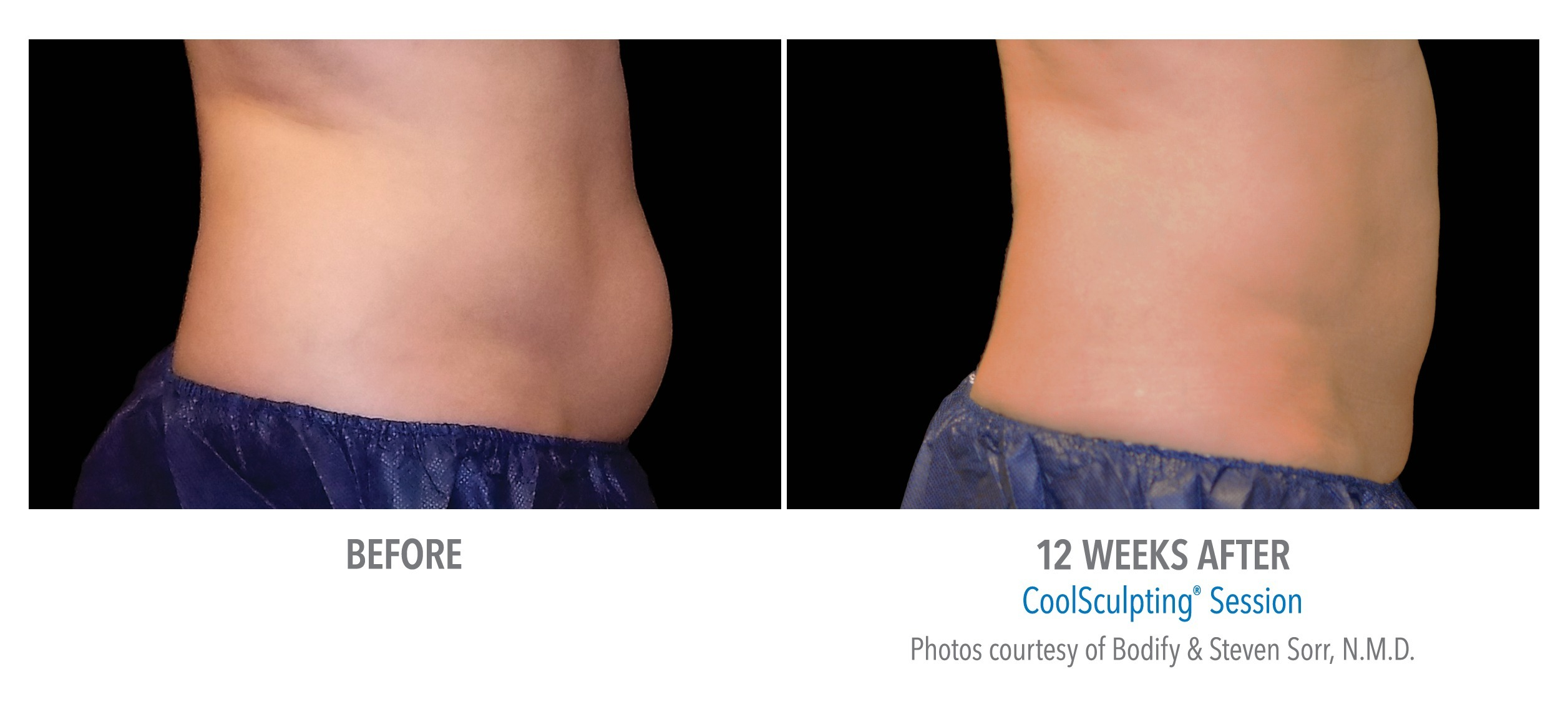 CoolSculpting® to Lose Belly Fat