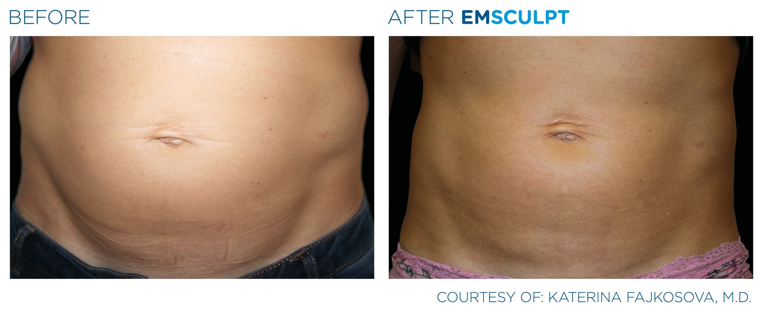 Before and After EMSculpt for the Abdomen