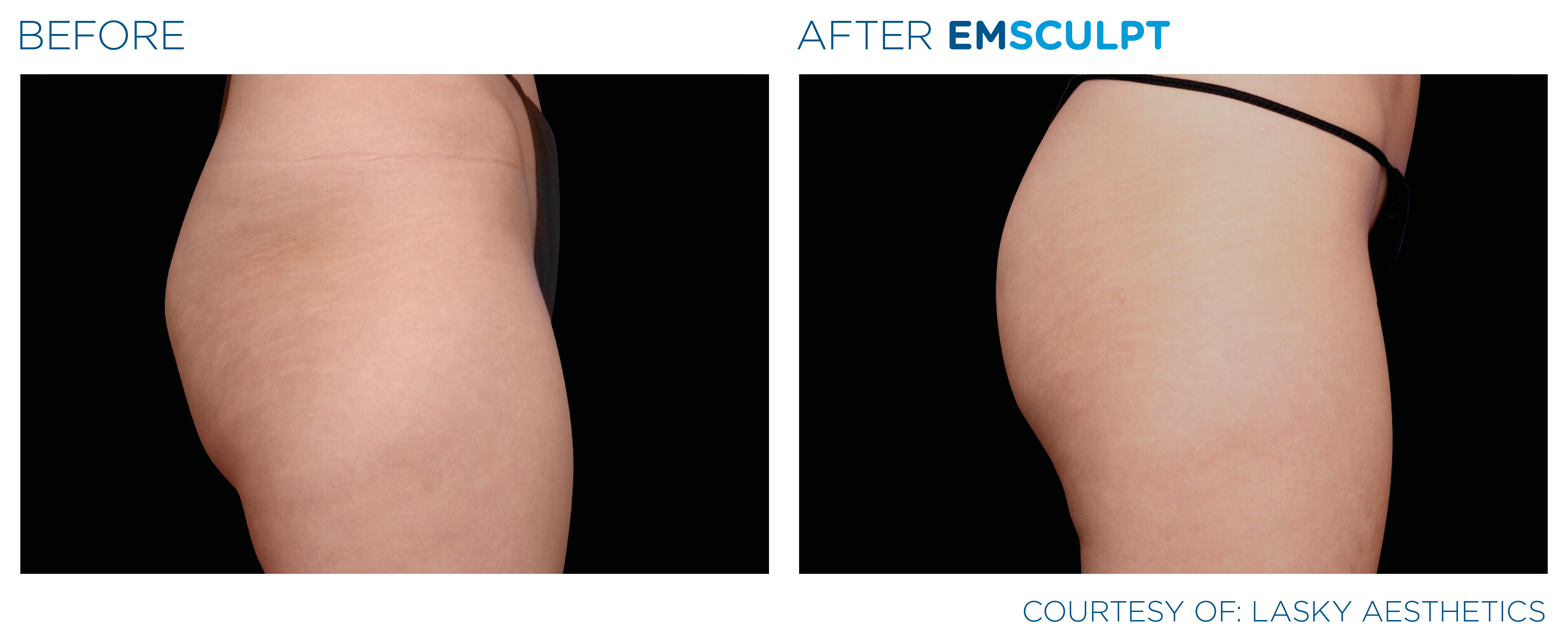 Before and After EMSculpt Butt Lift